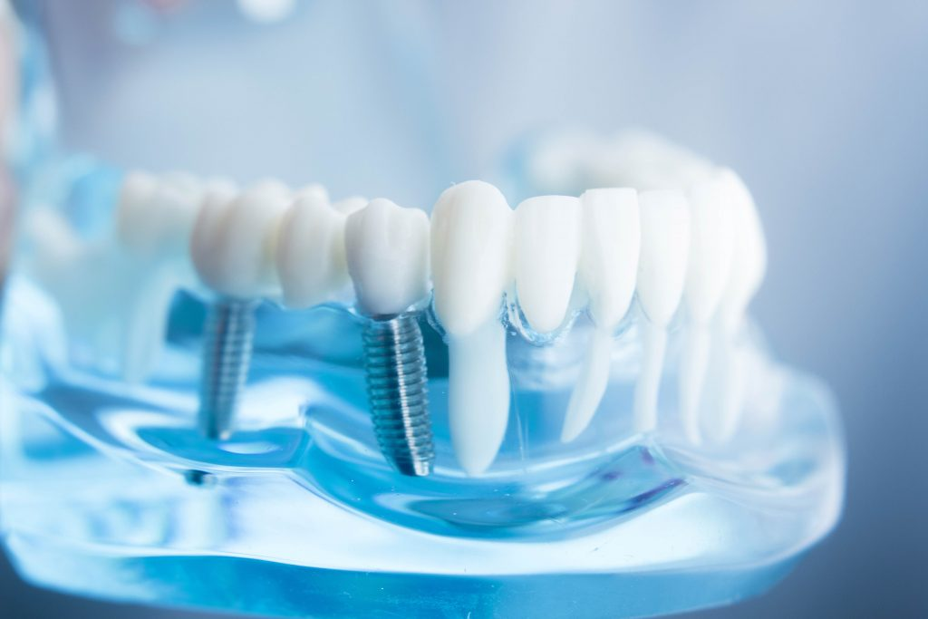 dental implant treatment IRHTO