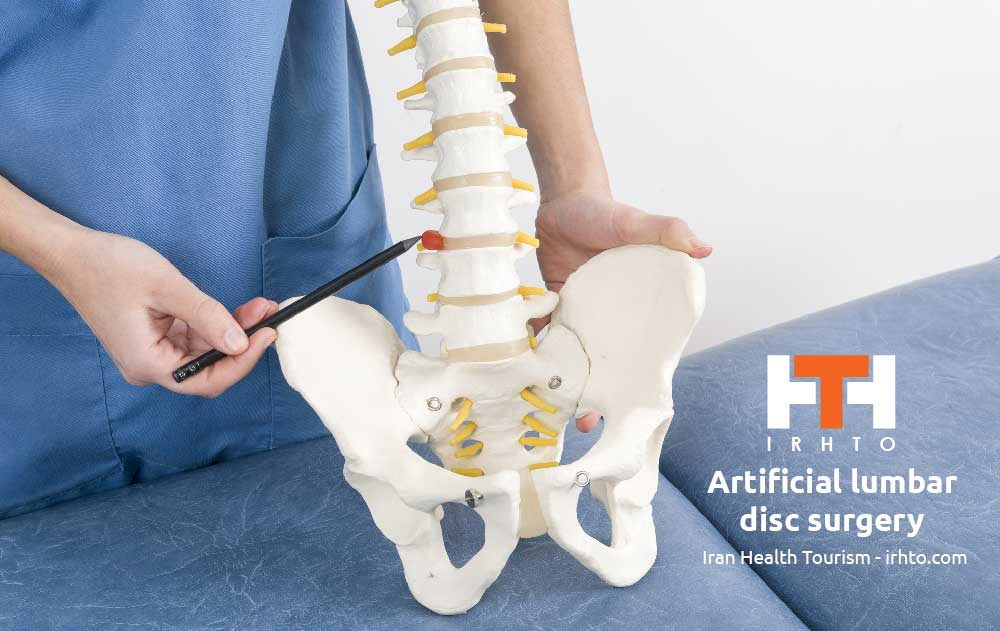 Artificial Lumbar Disc Surgery