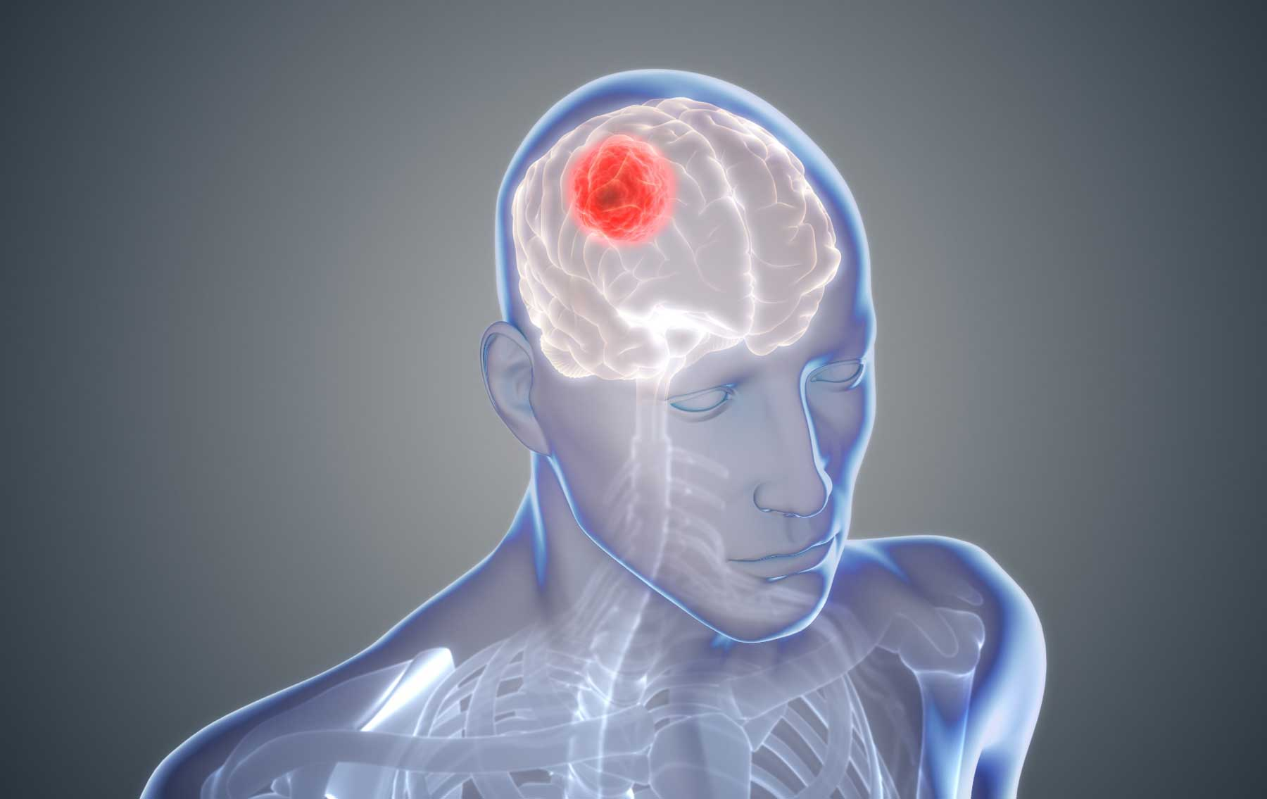 Astrocytoma Tumors