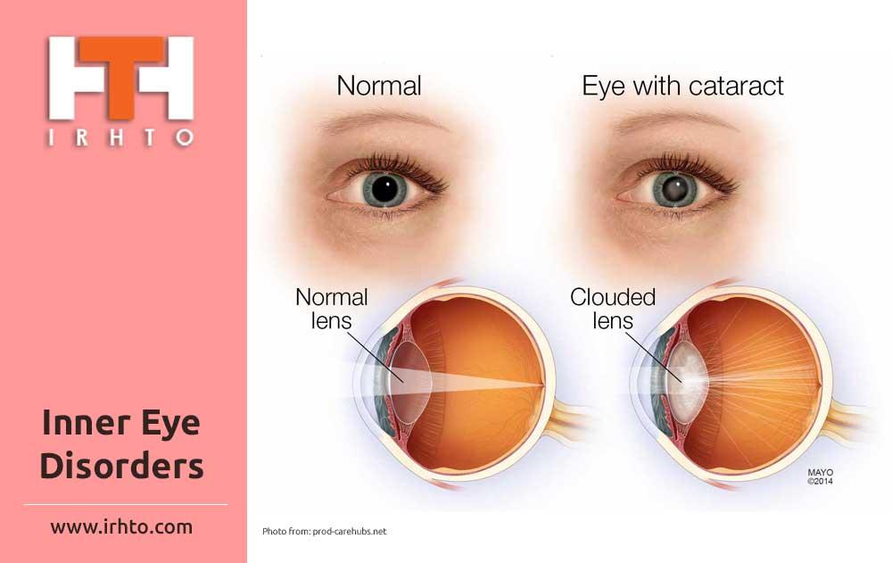 Inner Eye Disorders