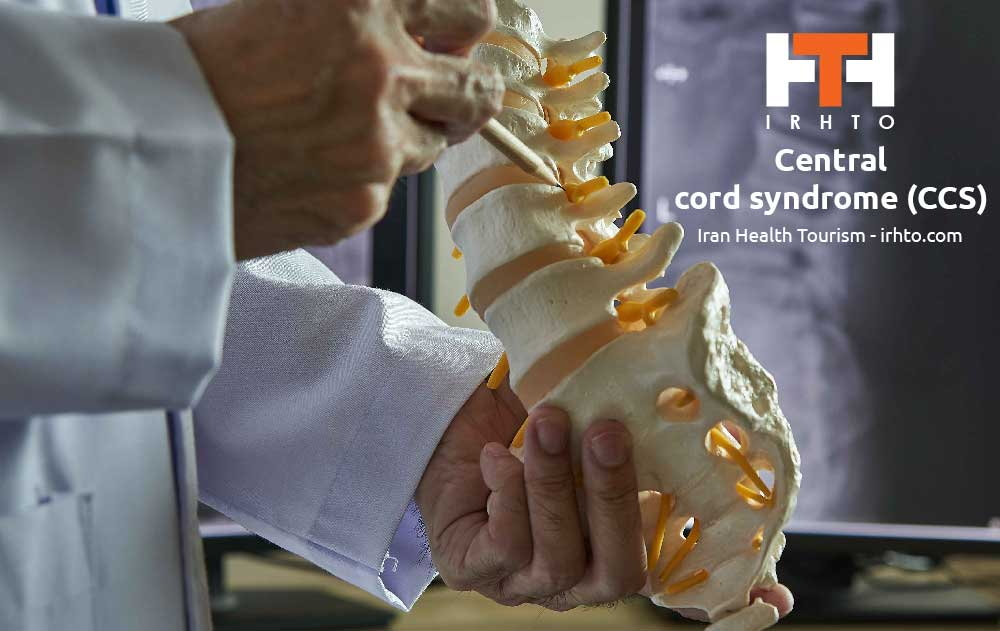 Central Cord Syndrome (CCS)
