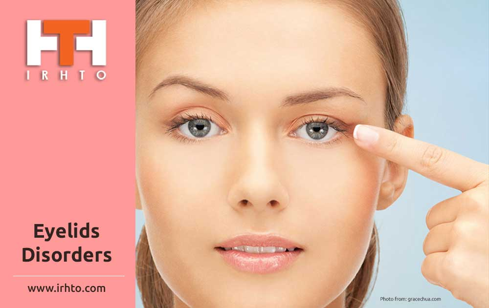 Eyelids Disorders