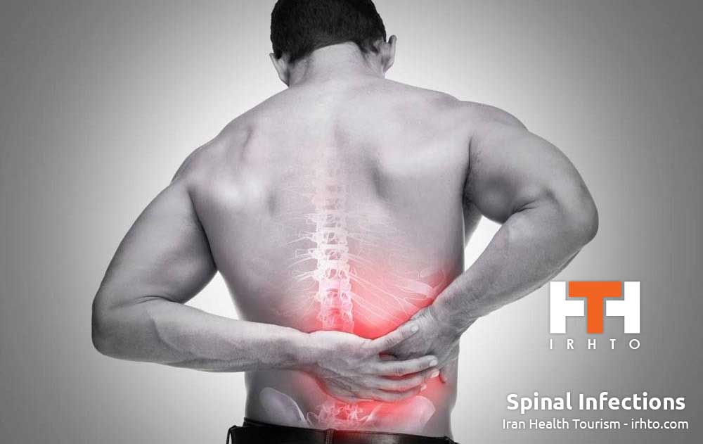Spinal Infections
