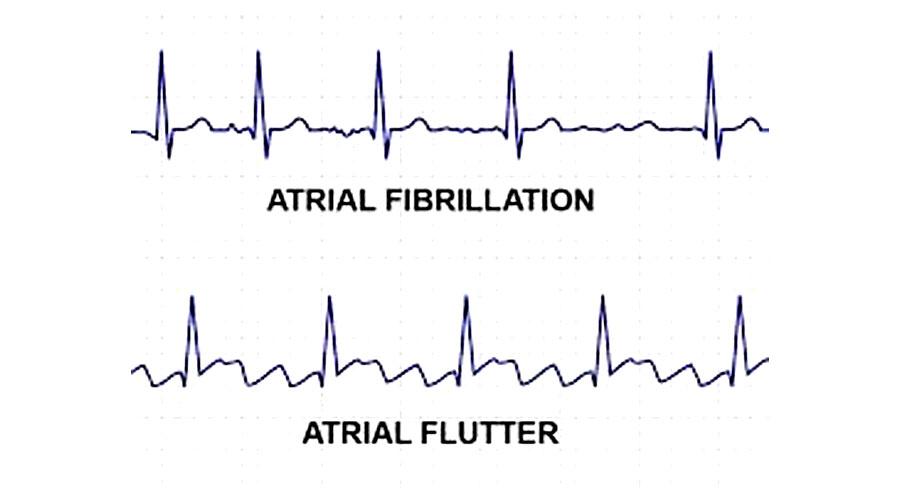 Atrial Fibrillation and Flutter