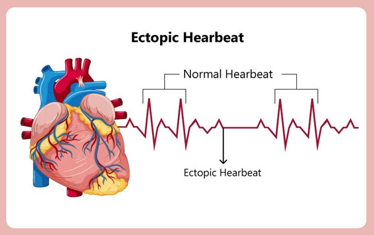 Ectopic Heartbeats