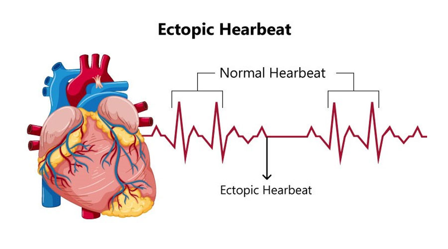 Ectopic Heartbeats