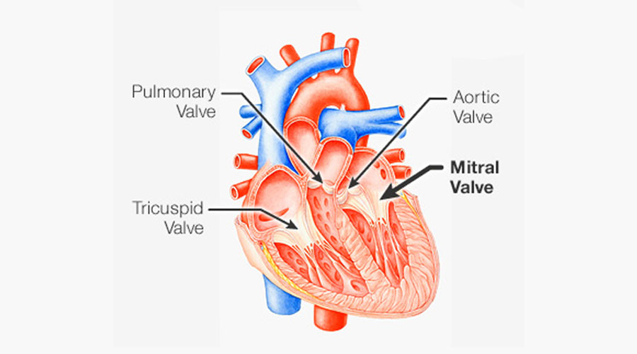 Mitral Valve Prolapse
