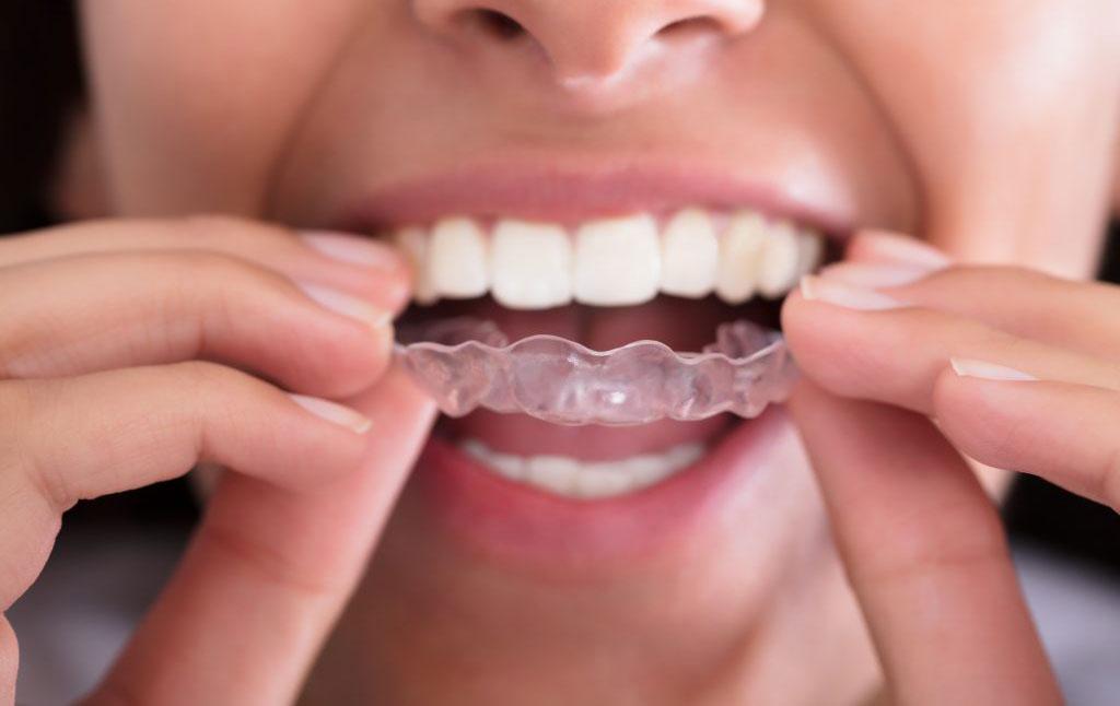 Mouth Guards/Bite Splints