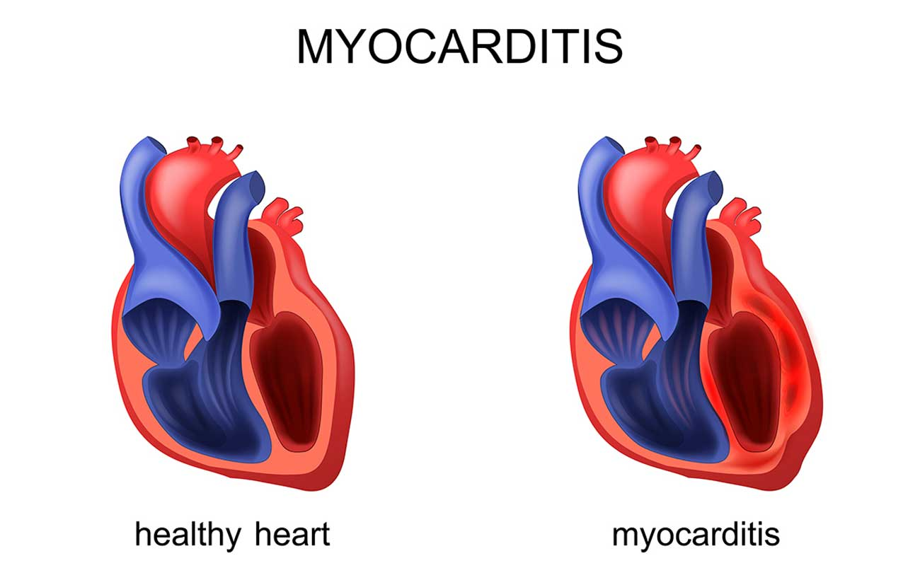 Myocarditis