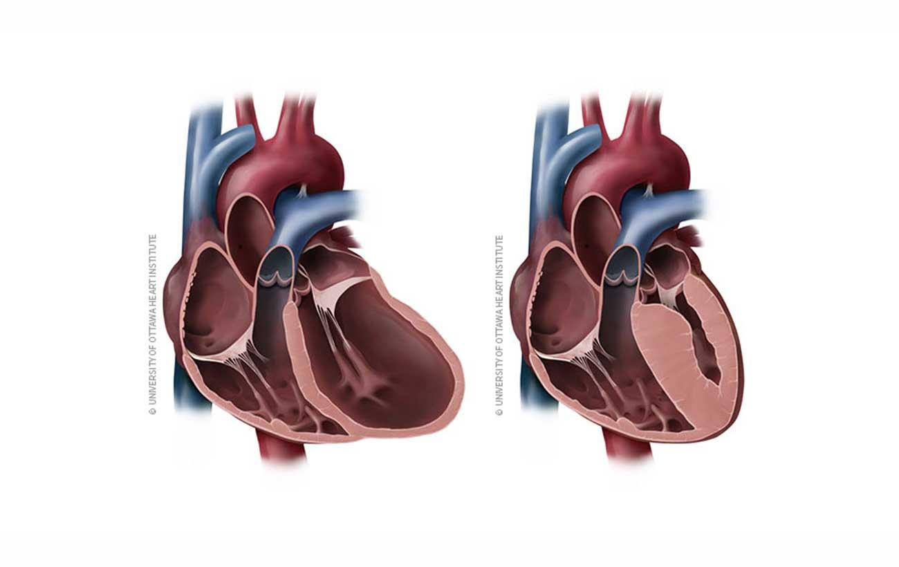 Nutritional Cardiomyopathy