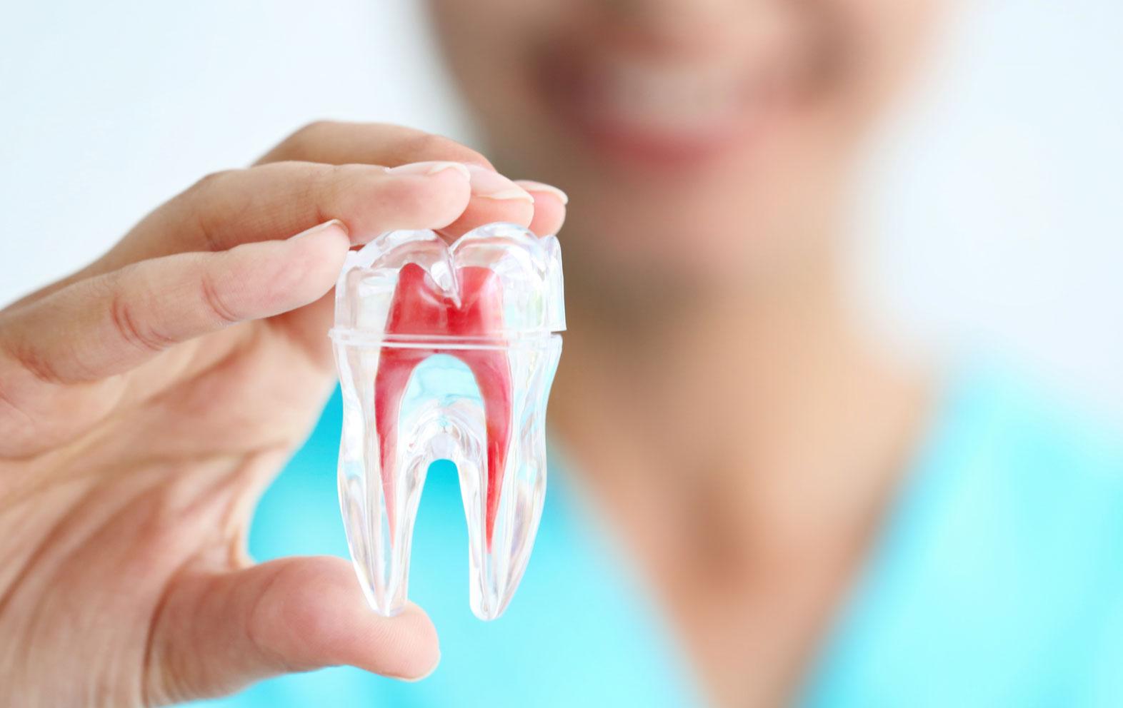 Root Canals (Endodontics)